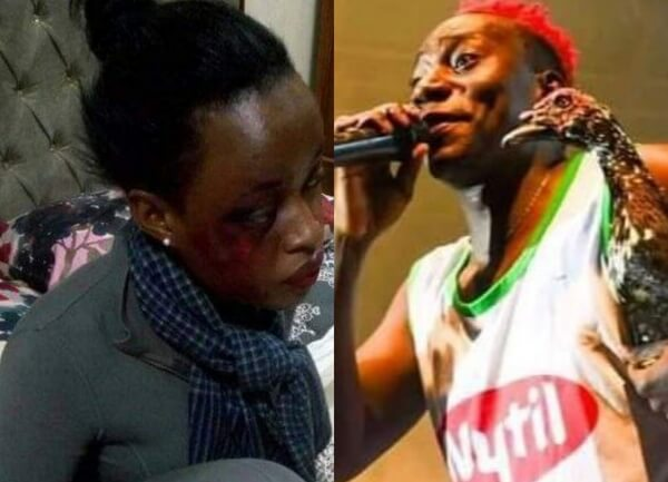 'Darxx Kartel Made Me His Punching Bag' Momo 19 Spills Dirty Secrets About Her Broken Marriage
